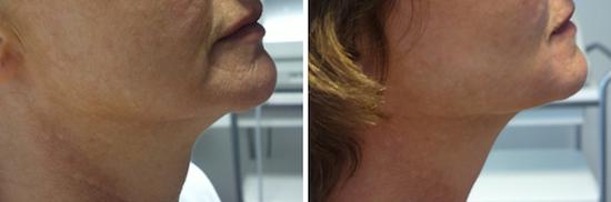 Ansiktsløft uten kirurgi hos Privatklinikken Oslo, Bergen, Stavanger, Kristiansand, Tromsø, Alta