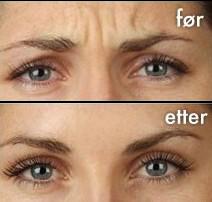 Botox behandling (rynkebehandling)