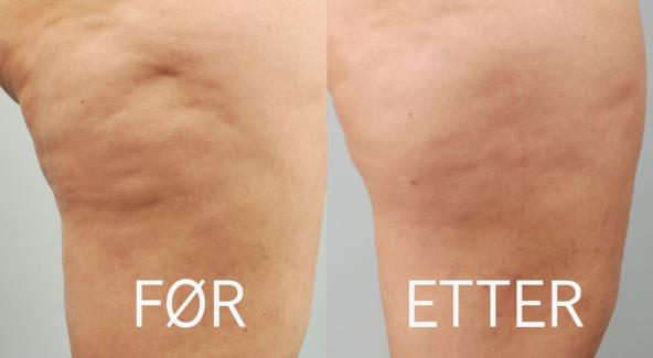 Cellulaze cellulitter før og etter behandling hos Privatklinikken Oslo, Bergen, Stavanger, Kristiansand, Tromsø og Alta
