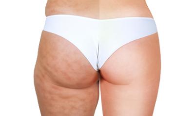 Bli kvitt cellulitter (appelsinhud) med Cellulaze