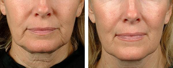 Thermage behandling: Oppstramming av hud ansikt/hals/kropp (Oslo, Bergen, Stavanger)