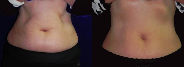 Vanquish fettfjerning uten kirurgi.. Før- og etterbilder.