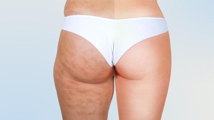 Cellulaze behandling for cellulitter (appelsinhud)