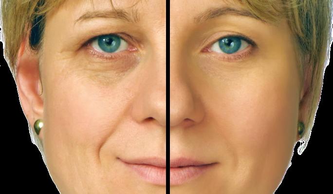 Thermage rynkebehandling for glatt hud (før og etter)