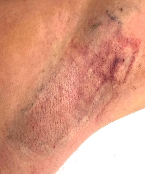 Rett etter behandling med MiraDry (permanent svettebehandling)