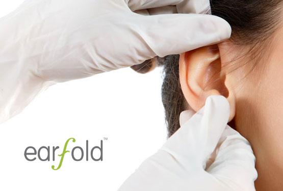 EarFold - behandling av utstående ører