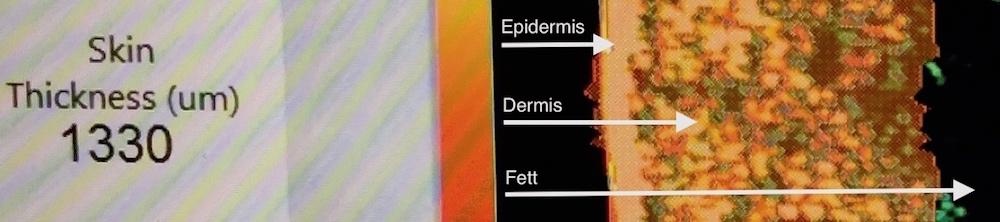 Hudbehandling med stamceller (stamcellebehandling) - etter