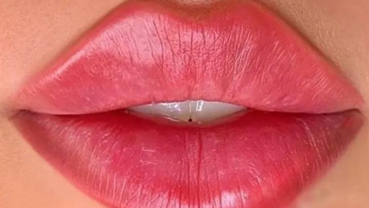Russian Lips - leppeforstørrelse